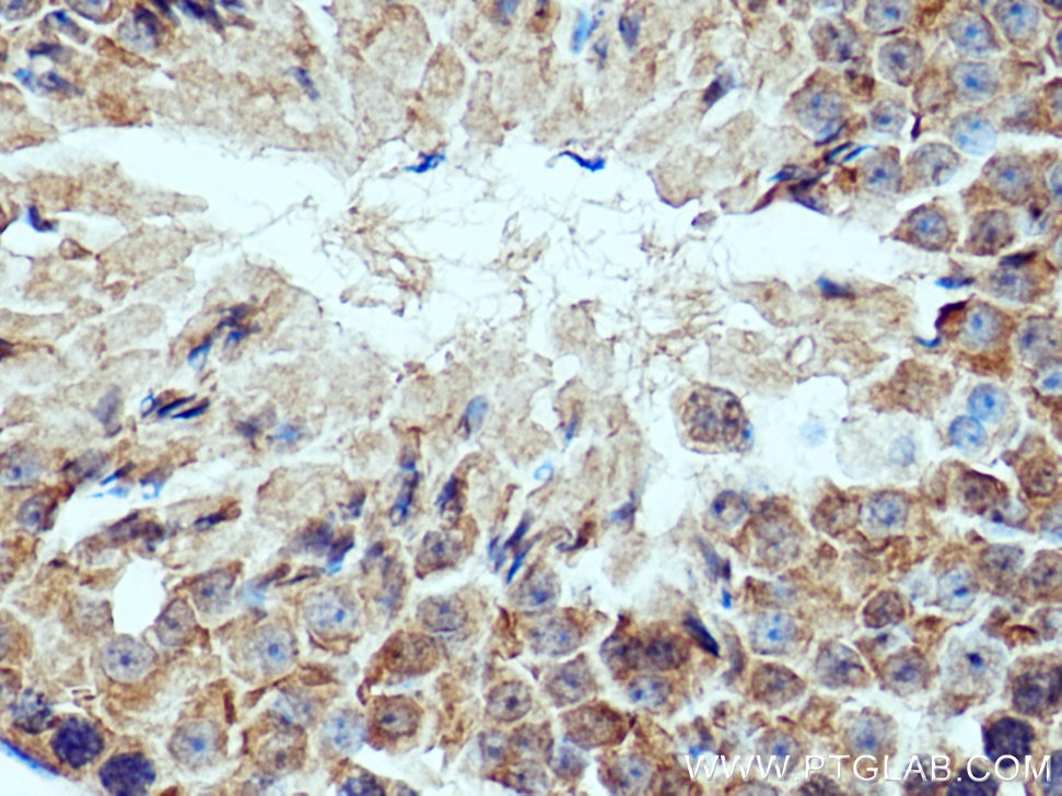 IHC staining of mouse testis using 28441-1-AP