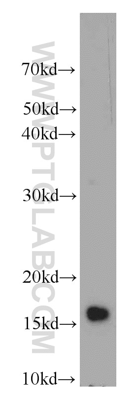 IGF1A-Specific