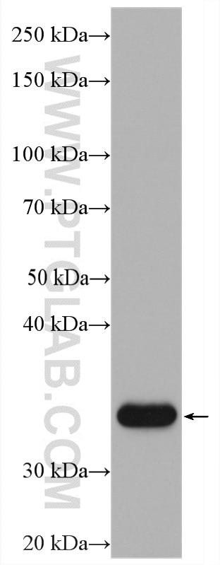WB analysis of SH-SY5Y using 11065-3-AP