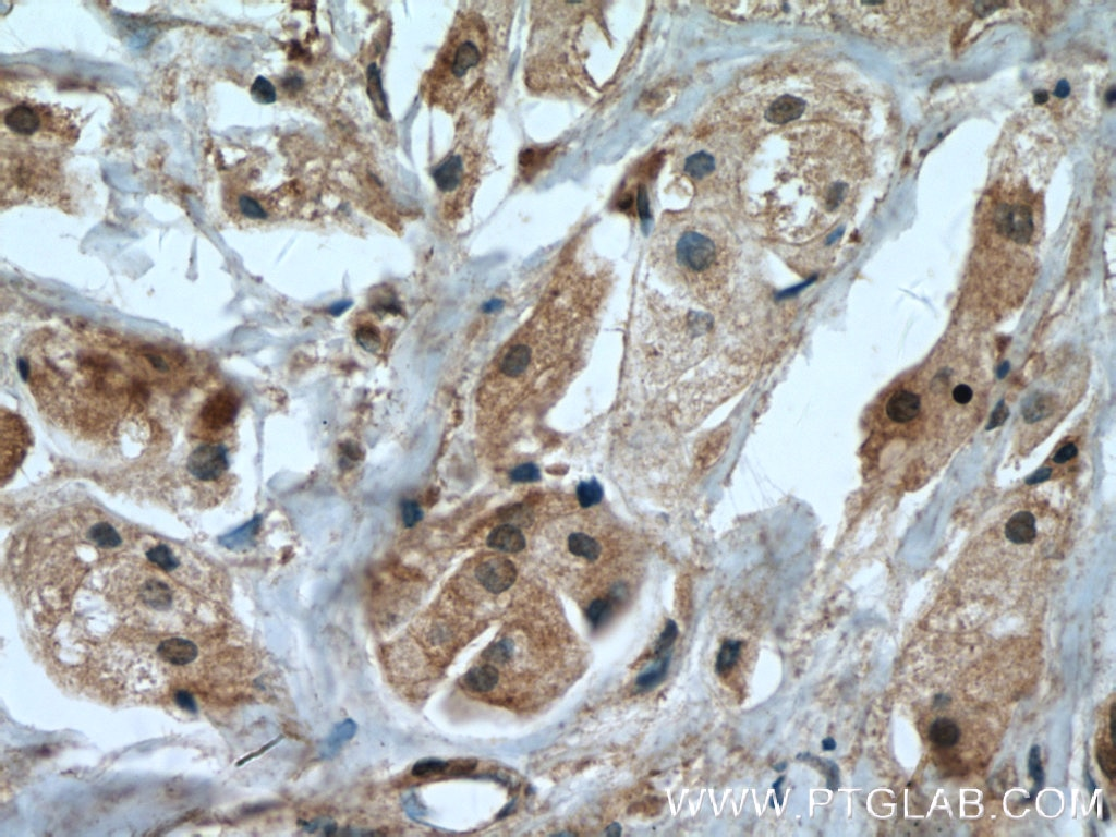 IHC staining of human breast cancer using 55205-1-AP