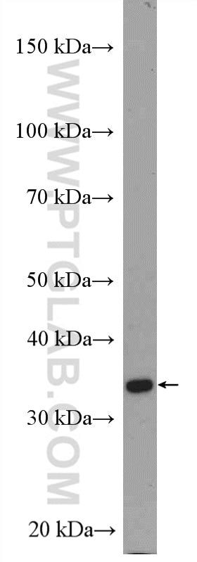 WB analysis of SKOV-3 using 55205-1-AP