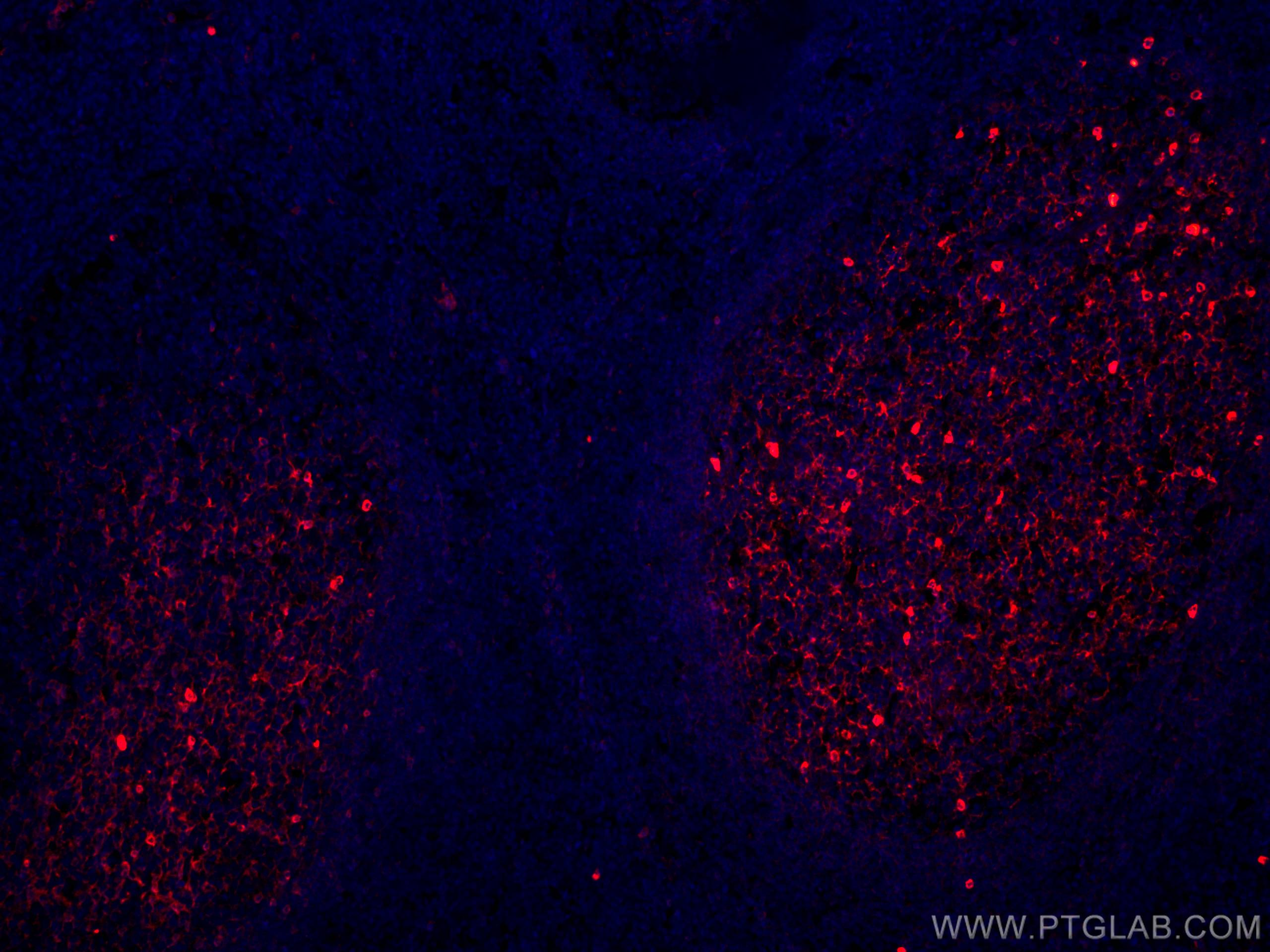 IF Staining of human tonsillitis using CL594-66484