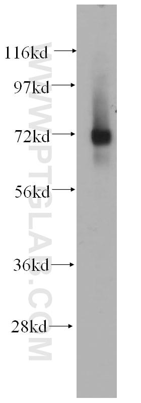 WB analysis of K-562 using 14387-1-AP