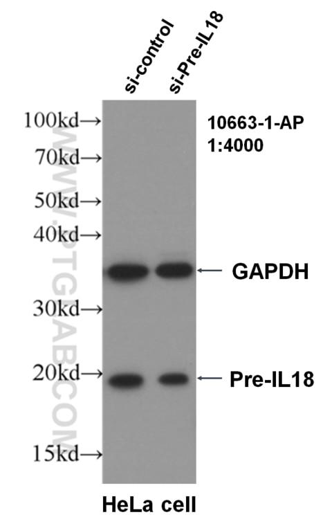 WB analysis of HeLa using 10663-1-AP