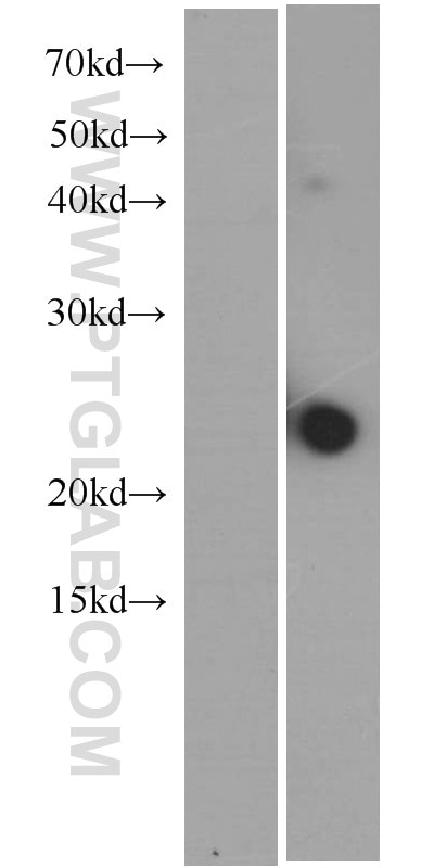 IL-23A Monoclonal antibody