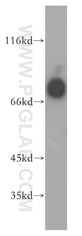 WB analysis of HL-60 using 13655-1-AP