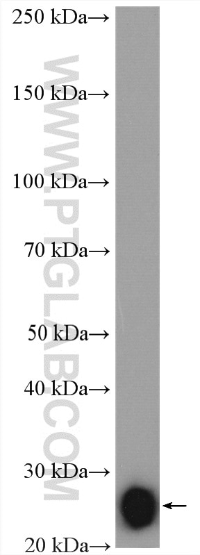 human plasma tissue were subjected to SDS PAGE followed by western blot  with 21865-1-AP (IL-6 antibody) at dilution of 1:1000 incubated at room  temperature ...