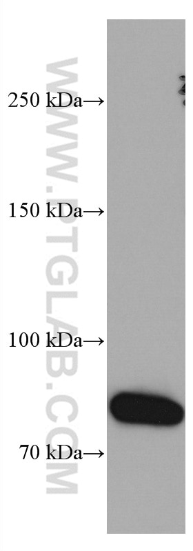 WB analysis of human spleen using 66855-1-Ig