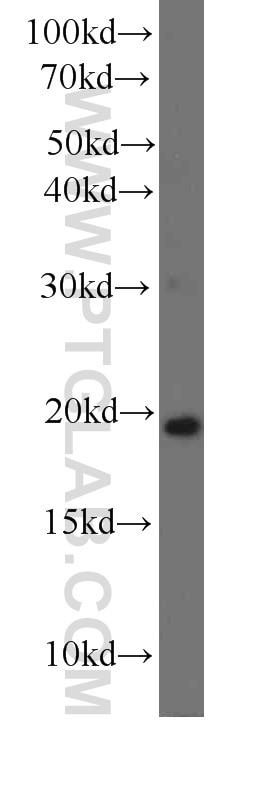 IL-7 Monoclonal antibody