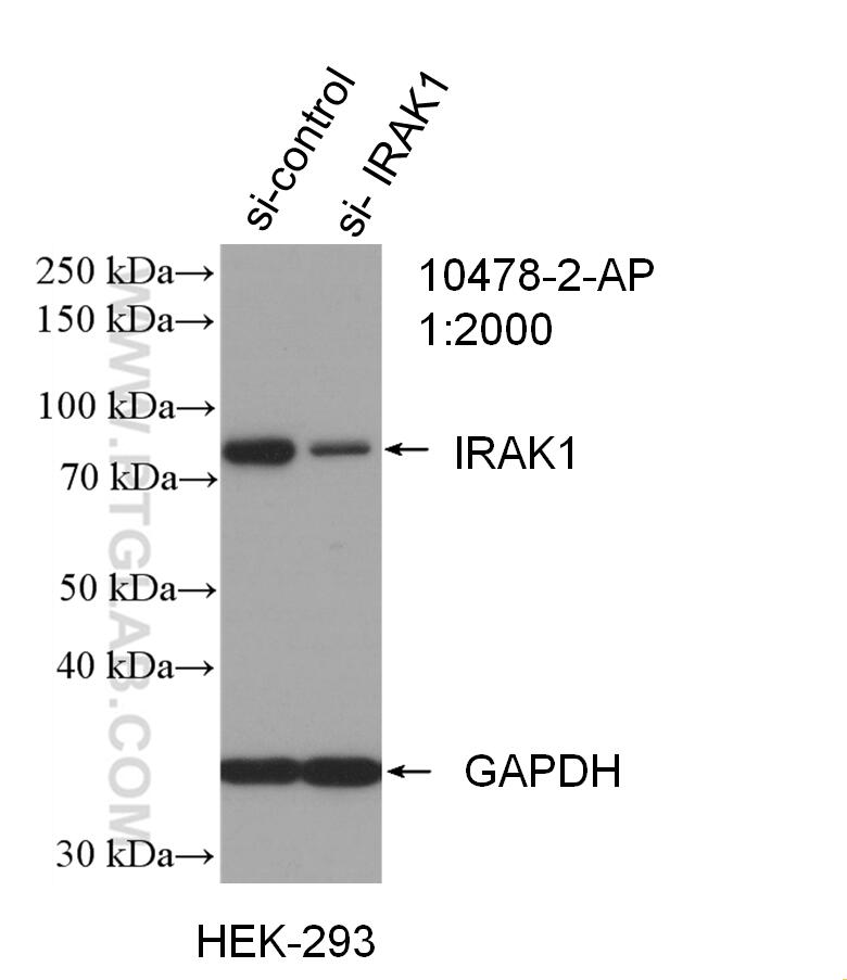 WB result of IRAK1 antibody (10478-2-AP; 1:2000; incubated at room  temperature for 1.5 hours) with sh-Control and sh-IRAK1 transfected HEK-293  cells