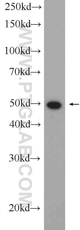 WB analysis of mouse spleen using 11247-2-AP
