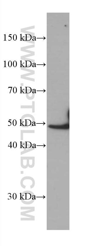WB analysis of human spleen using 66451-1-Ig