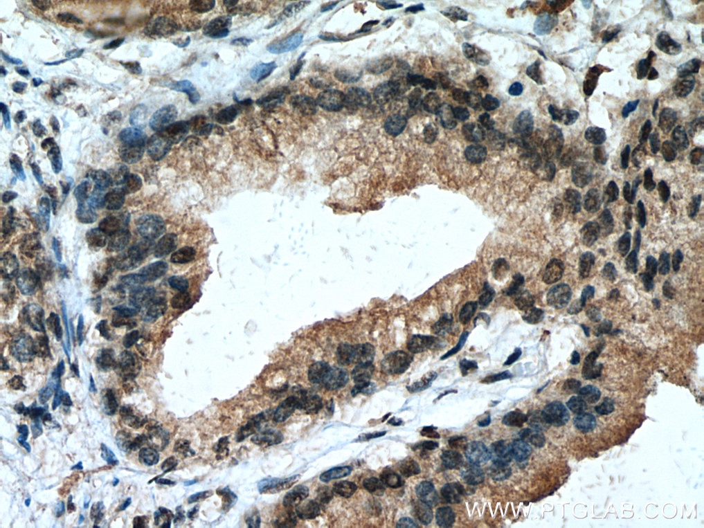 IHC staining of human prostate cancer using 10547-1-AP