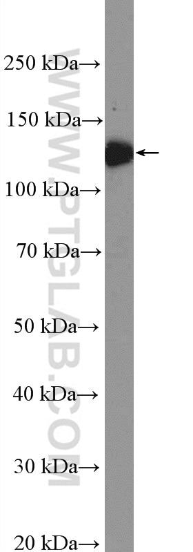 WB analysis of human blood using 24552-1-AP