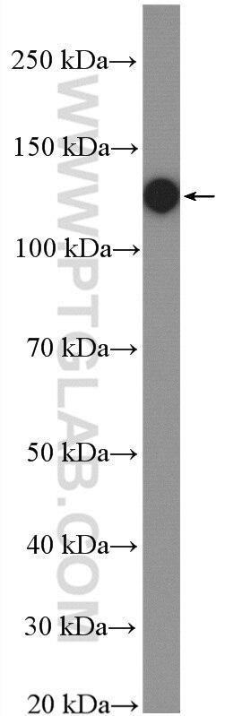 WB analysis of MCF-7 using 27096-1-AP