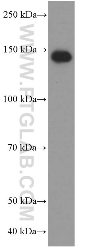 WB analysis of human spleen using 60258-1-Ig