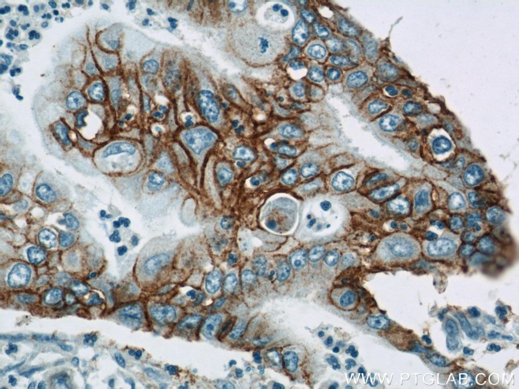 Integrin Beta 4 Polyclonal antibody