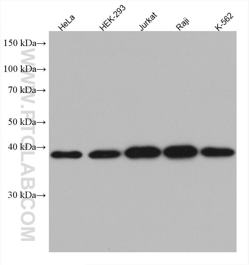WB analysis using 66418-1-Ig