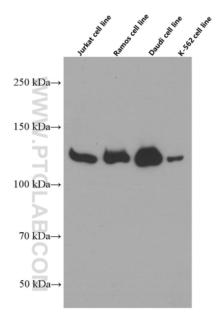 JAK1 Monoclonal antibody