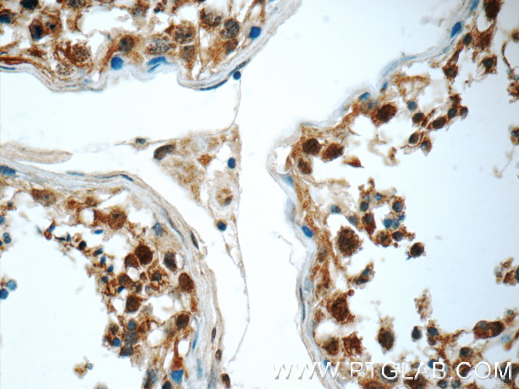 IHC staining of human testis using 10424-1-AP