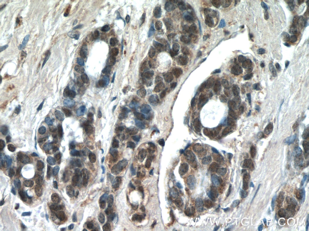 IHC staining of human cervical cancer using 24909-1-AP