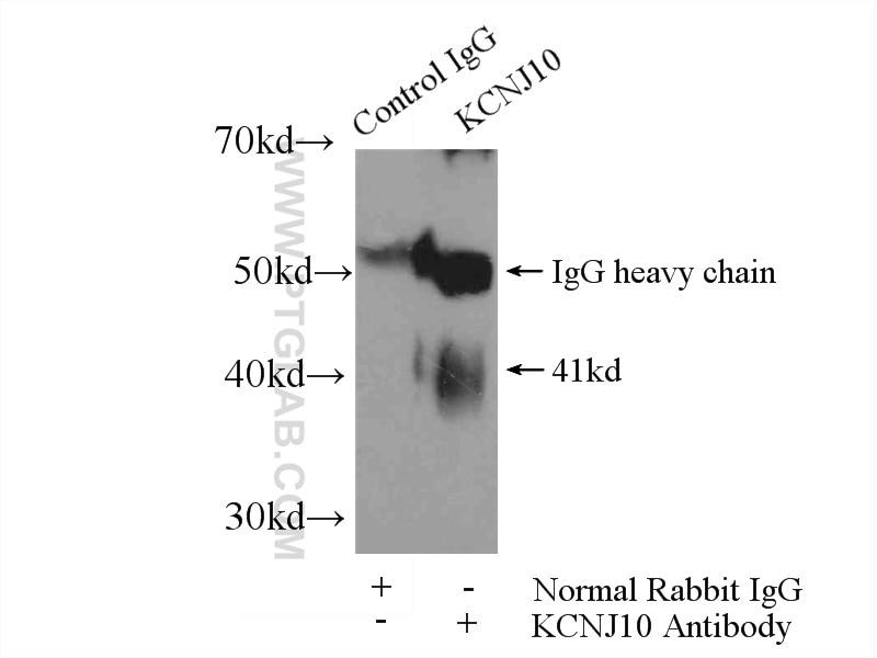 IP experiment of rat brain using 12503-1-AP