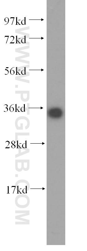 WB analysis of HeLa using 15988-1-AP