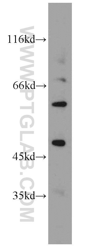 WB analysis of A549 using 19965-1-AP