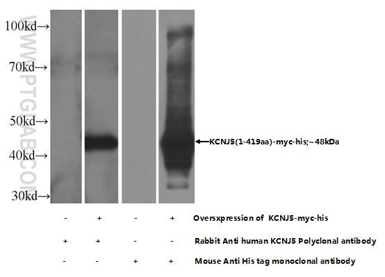KCNJ5 Polyclonal antibody