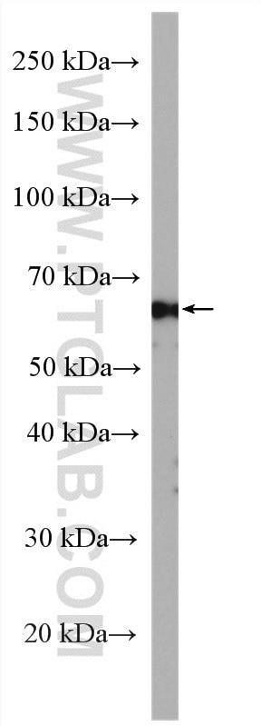 WB analysis of SH-SY5Y using 18258-1-AP