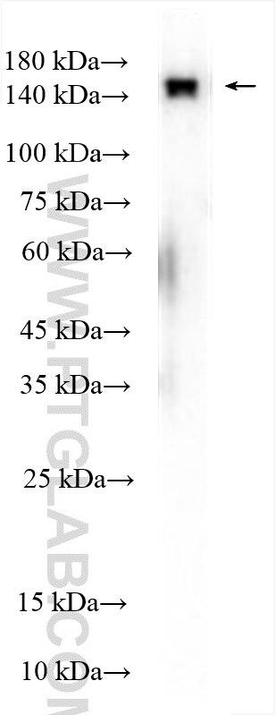 WB analysis of HEK-293 using 24693-1-AP