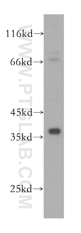 PC-3 cells were subjected to SDS PAGE followed by western blot with 16693-1-AP(KLHL14  antibody) at dilution of 1:1000 incubated at room temperature for 1.5 ...