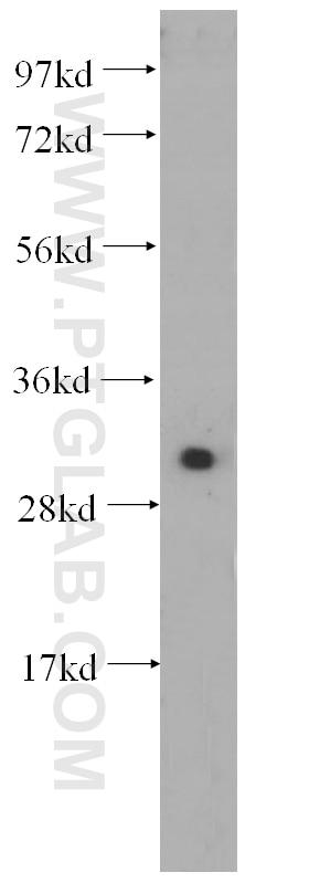 WB analysis of HeLa using 14232-1-AP