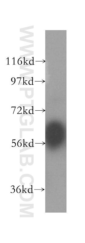WB analysis of HeLa using 11926-1-AP