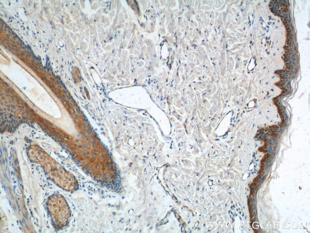 IHC staining of human skin using 22221-1-AP