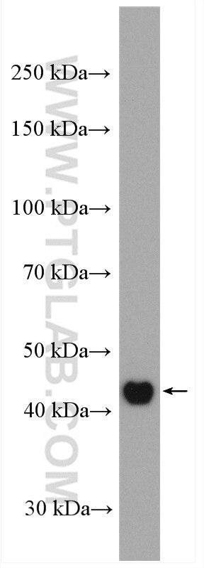 WB analysis of HeLa using 17265-1-AP