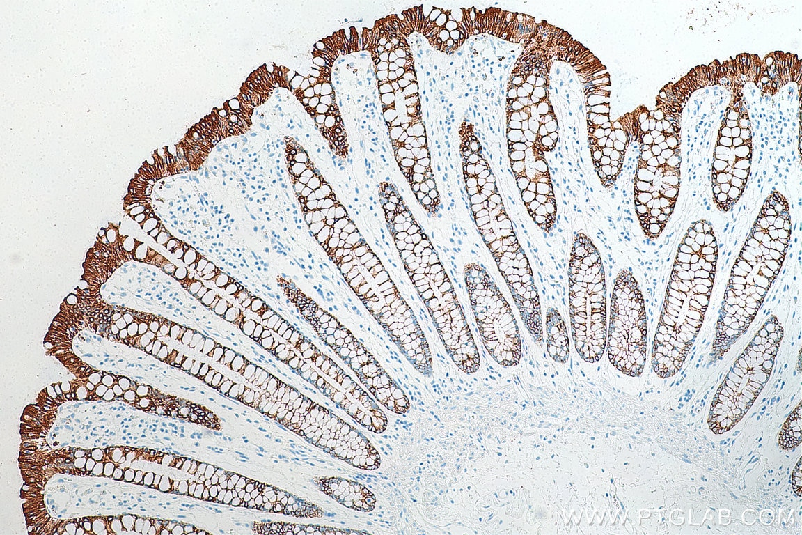 IHC staining of human colon using 10712-1-AP