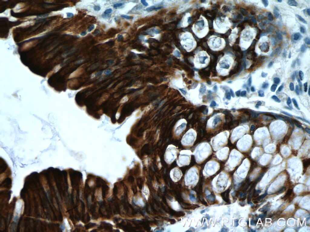 Cytokeratin 19
