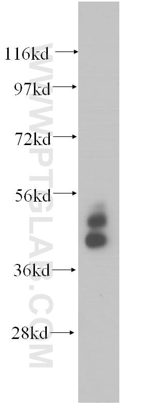 Cytokeratin 19 Polyclonal antibody
