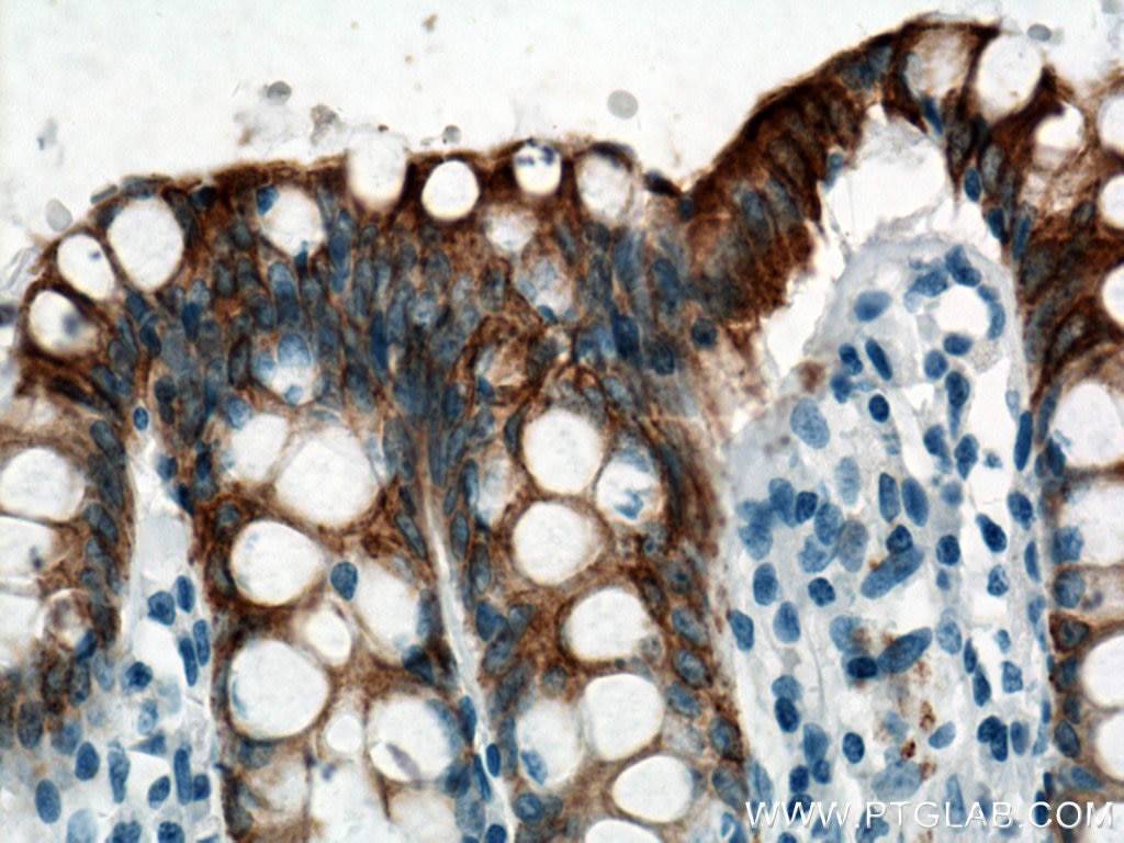 IHC staining of human colon using 17329-1-AP