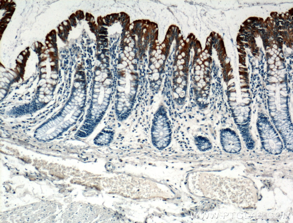 Cytokeratin 20 Polyclonal antibody