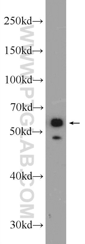 WB analysis of A431 using 16572-1-AP