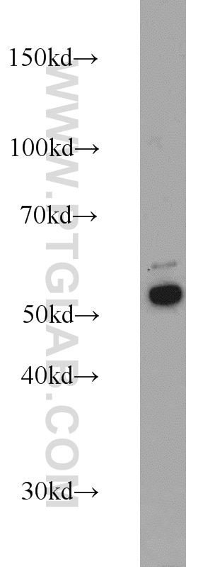 Cytokeratin 7