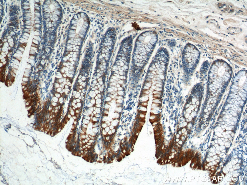 IHC staining of human colon using 10384-1-AP