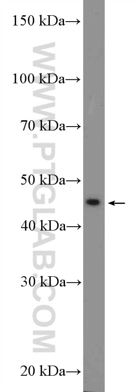 WB analysis of MCF-7 using 22341-1-AP