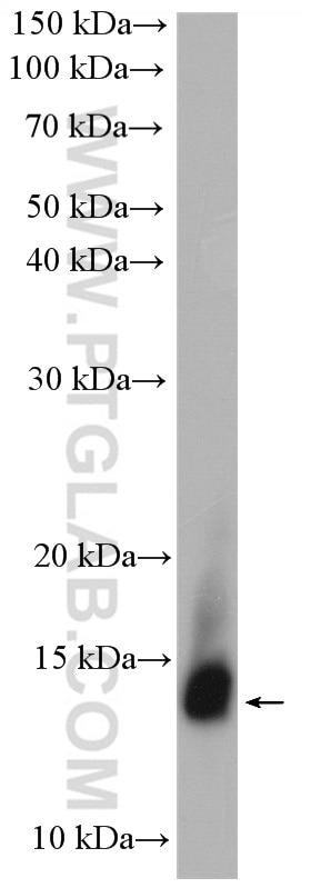 WB analysis of human saliva using 24871-1-AP