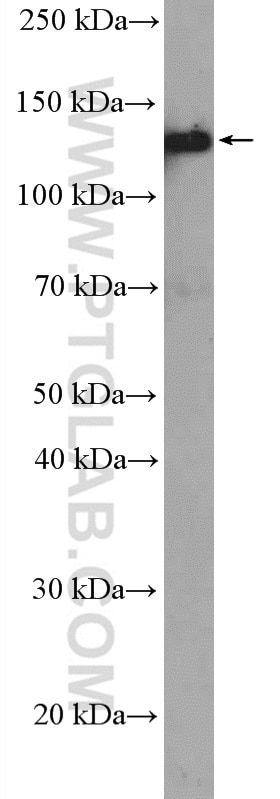 WB analysis of A431 using 26795-1-AP