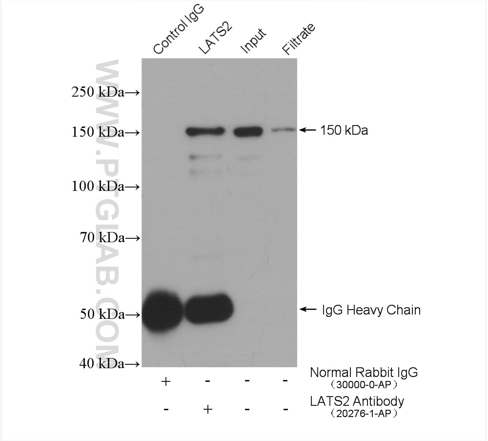 IP experiment of HEK-293 using 20276-1-AP