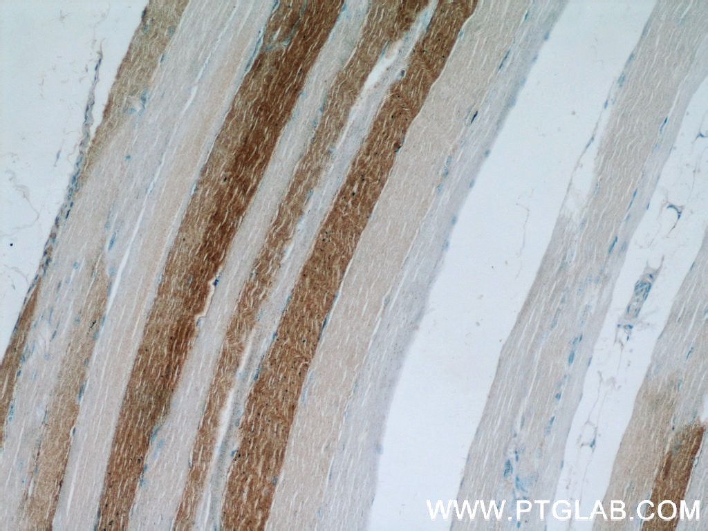 IHC staining of human skeletal muscle using 21799-1-AP