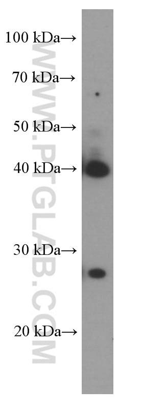 WB analysis of pig liver using 66287-1-Ig